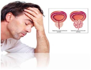 Заболевания мужчины простатит аденома лечение рецепты