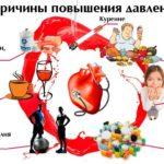 Как повысить артериальное давление — гипотония